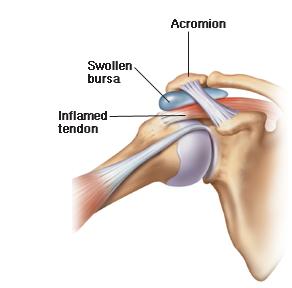 Shoulder Impingement and Subacromial Bursitis ...